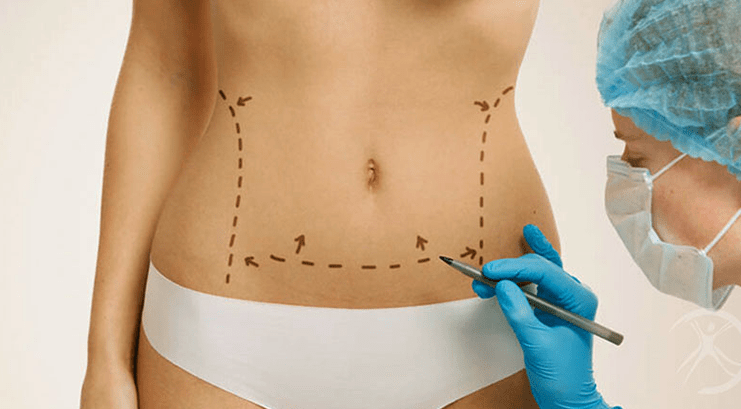 Modelagem do Corpo