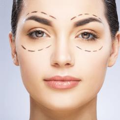 Cirurgia de pálpebra: detalhes e pós-operatório