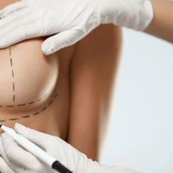 Conheça a mastopexia: cirurgia para levantar a mama sem o implante de silicone